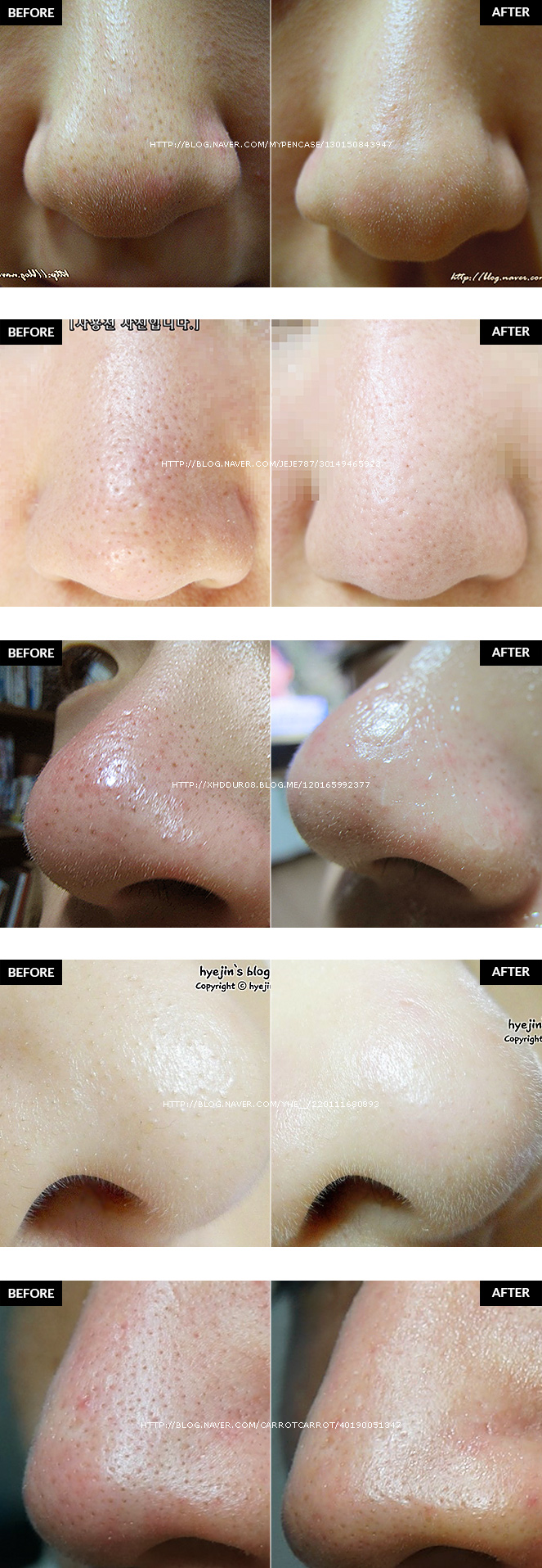 Skinmiso Pore Beauty Nose Pack (10 Weeks) - My Beauty Moments